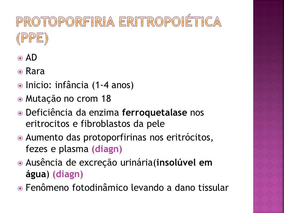 Protoporfiria Eritropoiética (ppe)
