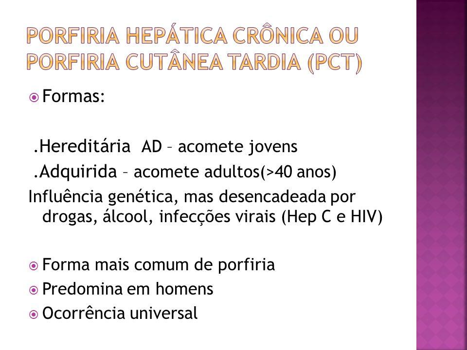Porfiria Hepática crônica ou Porfiria cutânea Tardia (PCT)