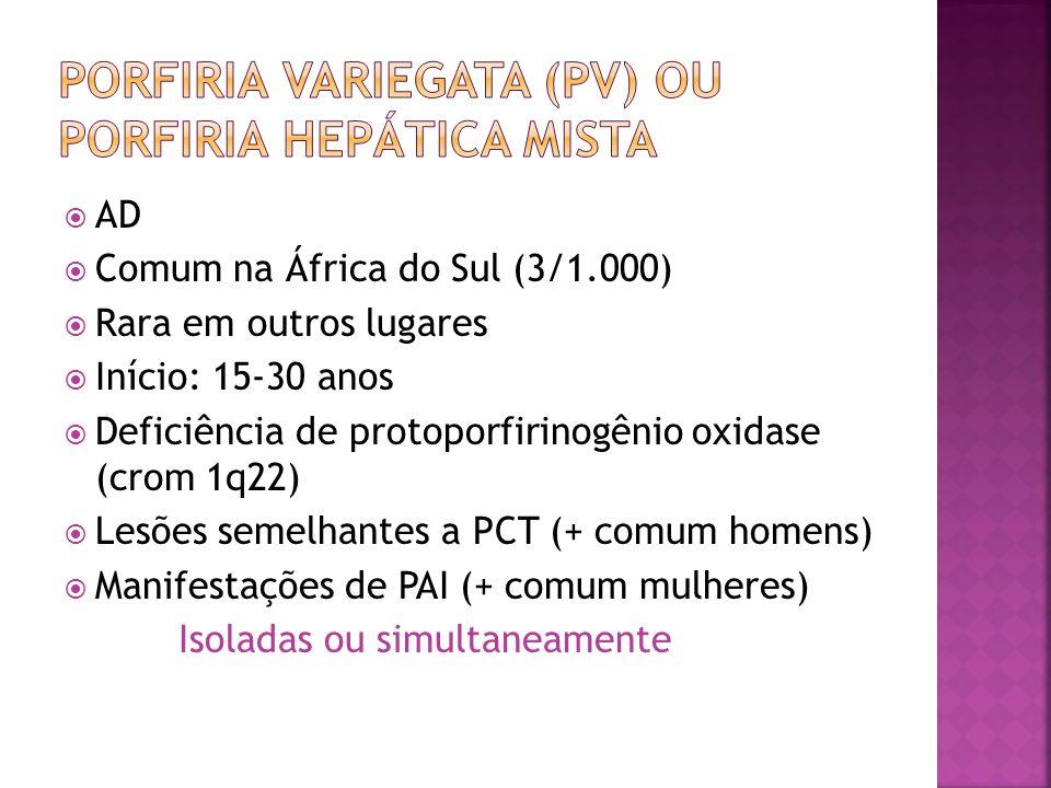 Porfiria variegata (PV) ou porfiria hepática mista