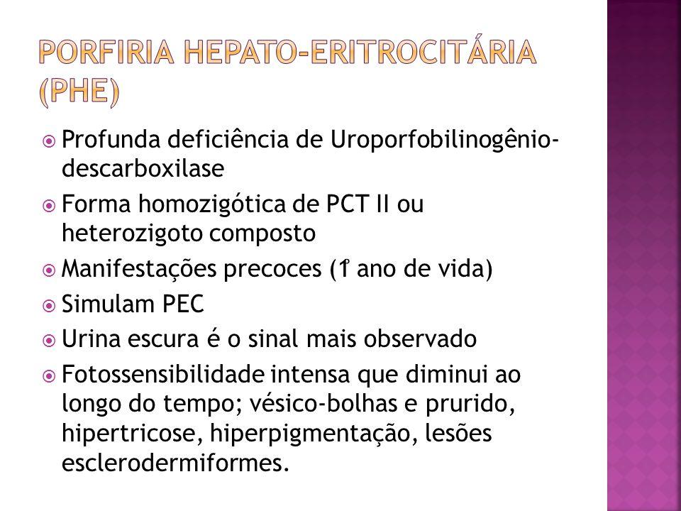 Porfiria hepato-eritrocitária (PHE)