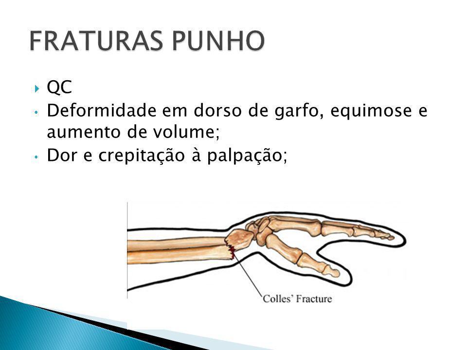 FRATURAS PUNHO QC.