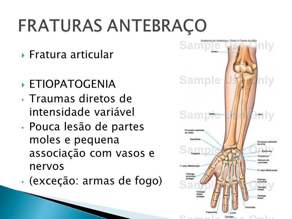 FRATURAS ANTEBRAÇO Fratura articular ETIOPATOGENIA