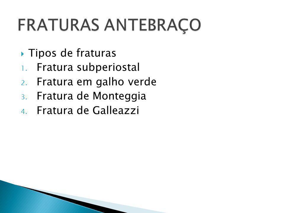 FRATURAS ANTEBRAÇO Tipos de fraturas Fratura subperiostal