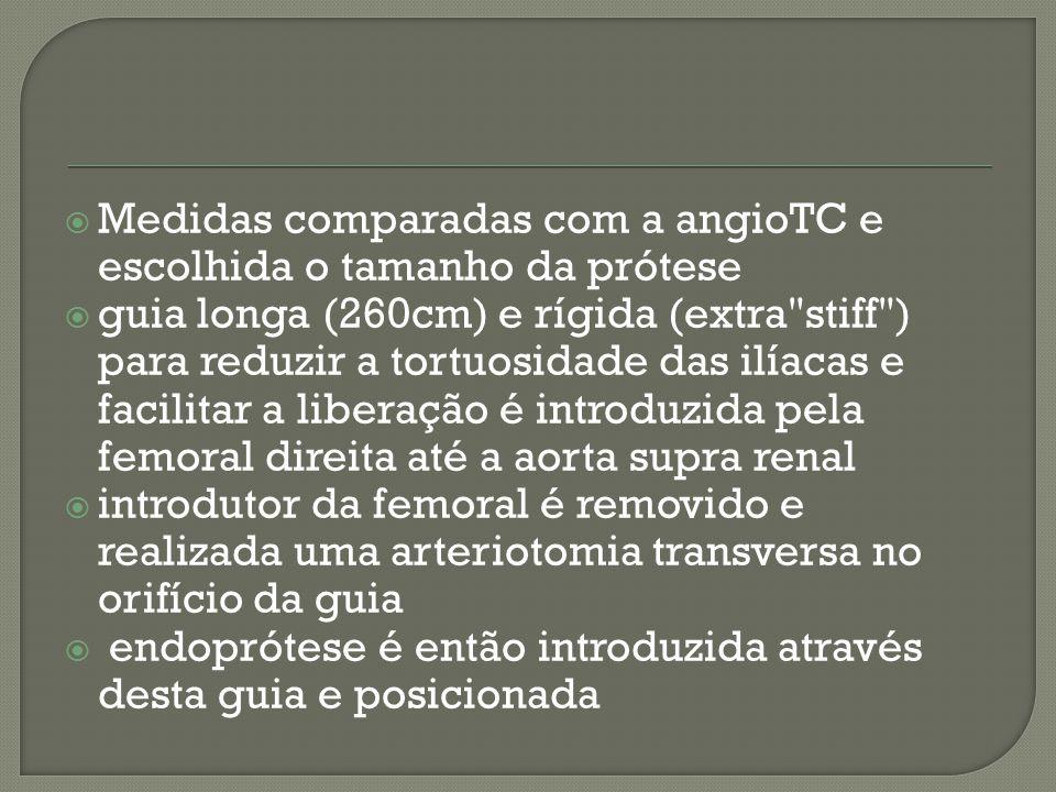Medidas comparadas com a angioTC e escolhida o tamanho da prótese