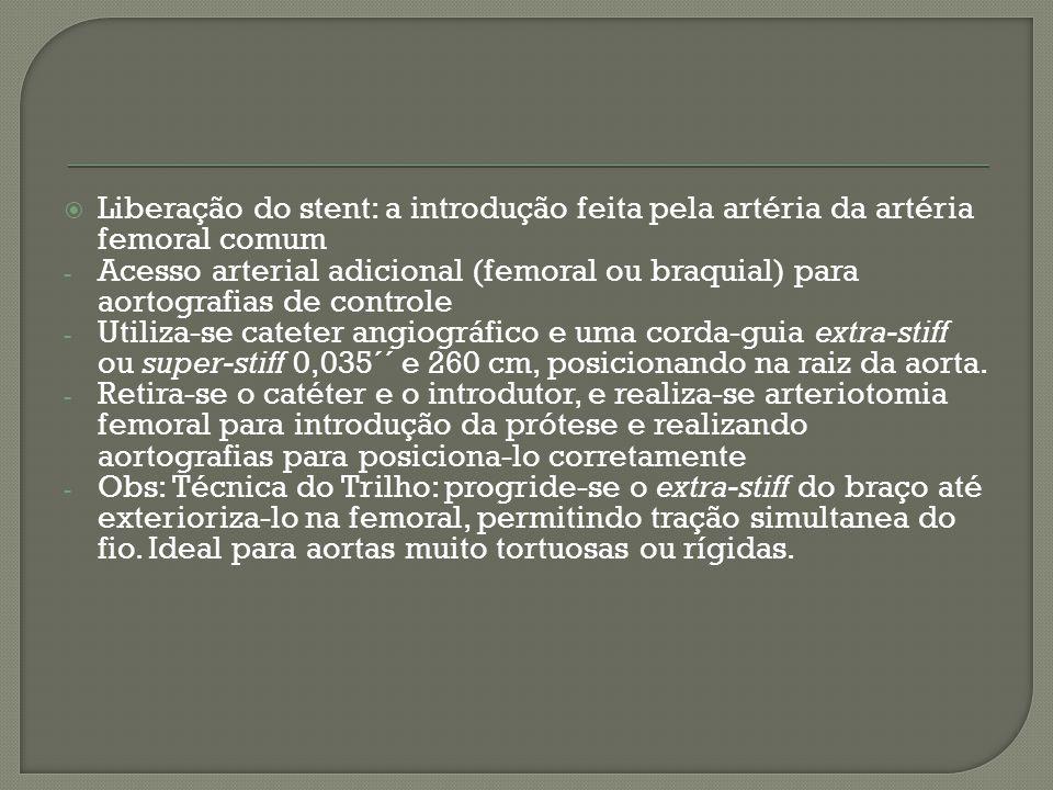 Liberação do stent: a introdução feita pela artéria da artéria femoral comum
