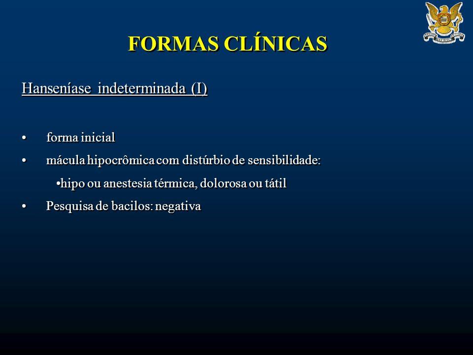 FORMAS CLÍNICAS Hanseníase indeterminada (I) forma inicial