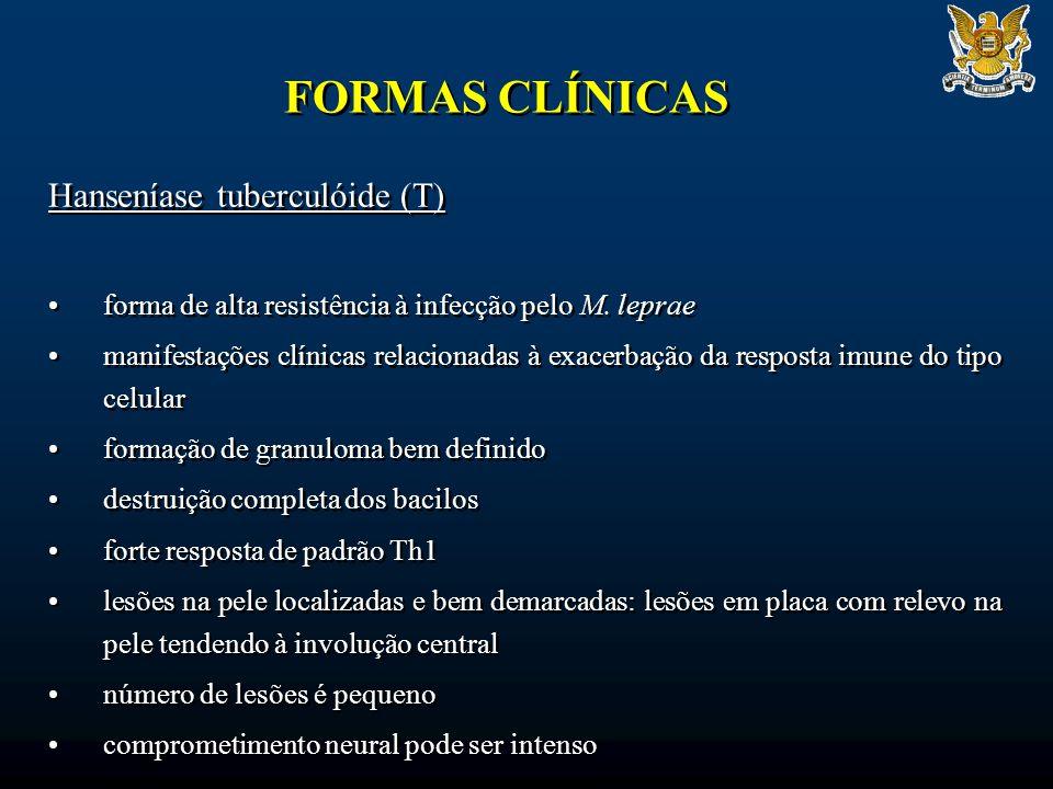 FORMAS CLÍNICAS Hanseníase tuberculóide (T)