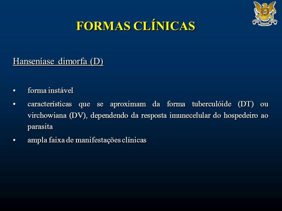 FORMAS CLÍNICAS Hanseníase dimorfa (D) forma instável