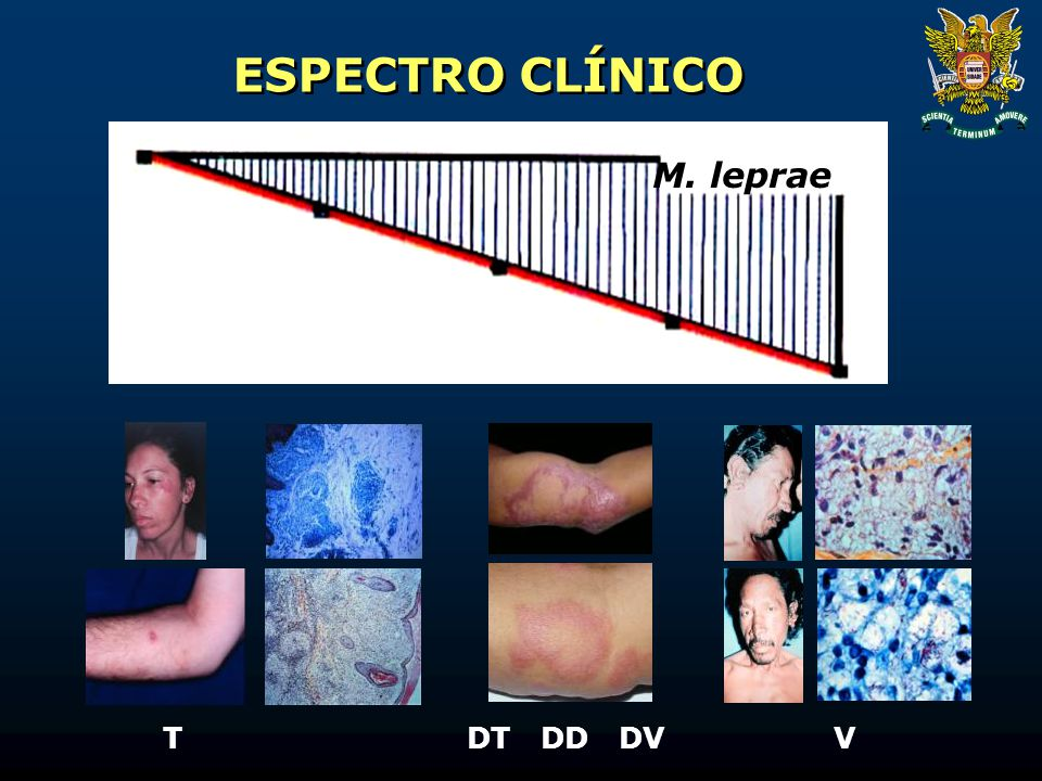 ESPECTRO CLÍNICO M. leprae T DT DD DV V