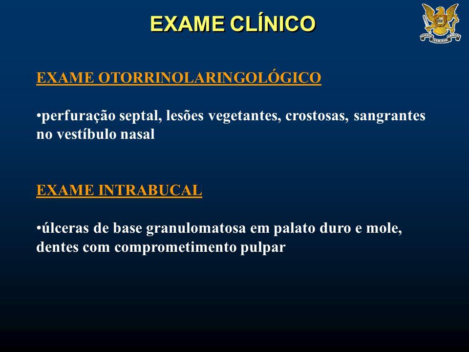 EXAME CLÍNICO EXAME OTORRINOLARINGOLÓGICO