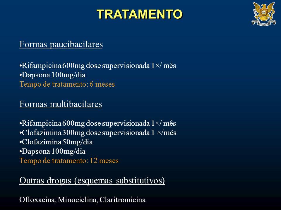 TRATAMENTO Formas paucibacilares Formas multibacilares