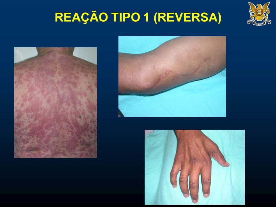 REAÇÃO TIPO 1 (REVERSA)