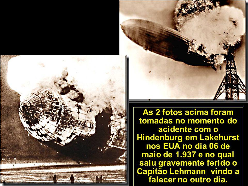 As 2 fotos acima foram tomadas no momento do acidente com o Hindenburg em Lakehurst nos EUA no dia 06 de maio de 1.937 e no qual saiu gravemente ferido o Capitão Lehmann vindo a falecer no outro dia.