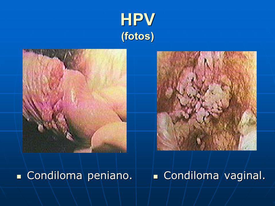 HPV (fotos) Condiloma peniano. Condiloma vaginal.