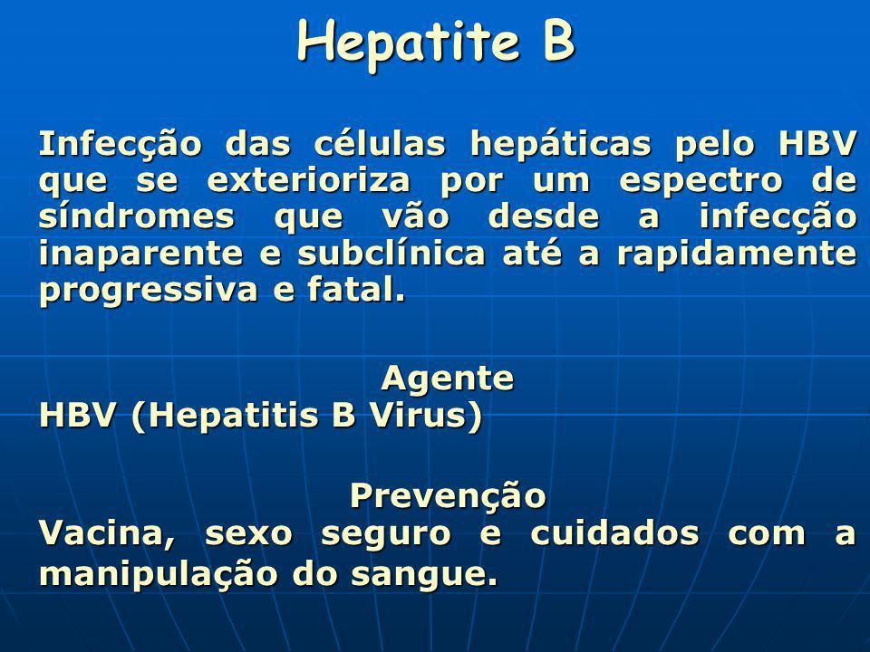 Hepatite B Agente HBV (Hepatitis B Virus)