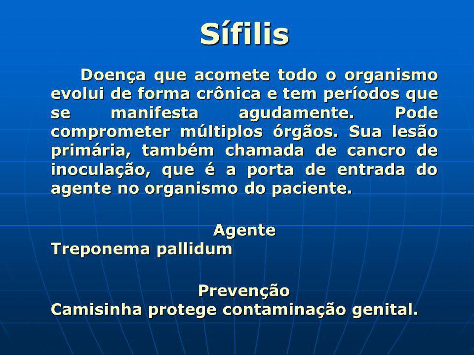 Sífilis Agente Treponema pallidum
