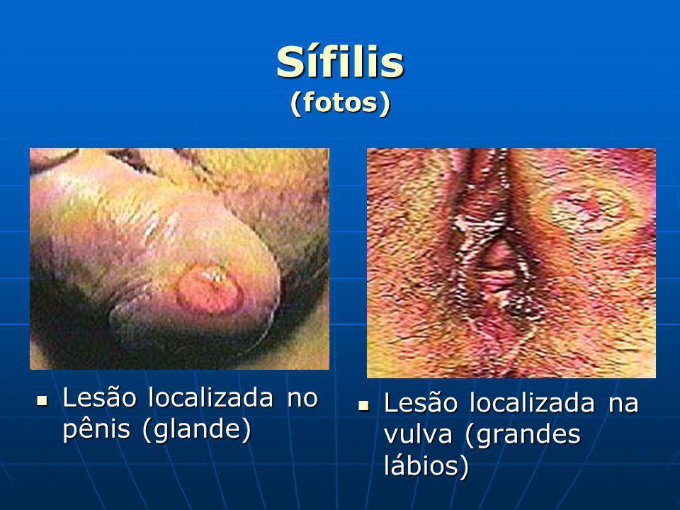 Sífilis (fotos) Lesão localizada no pênis (glande)