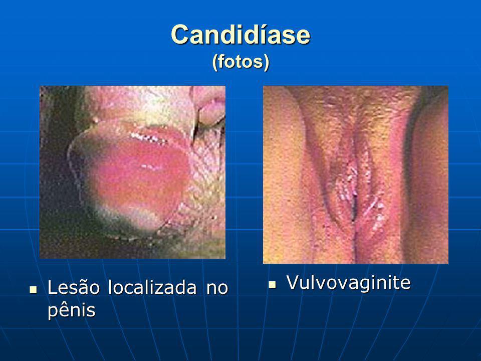 Candidíase (fotos) Vulvovaginite Lesão localizada no pênis