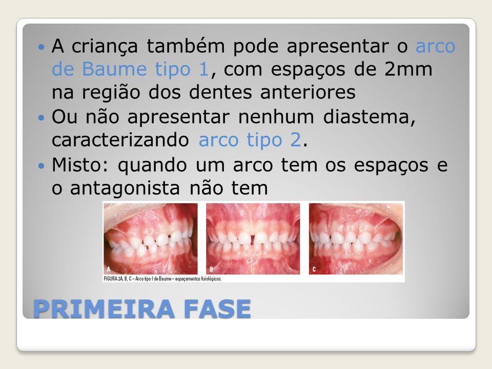 A criança também pode apresentar o arco de Baume tipo 1, com espaços de 2mm na região dos dentes anteriores