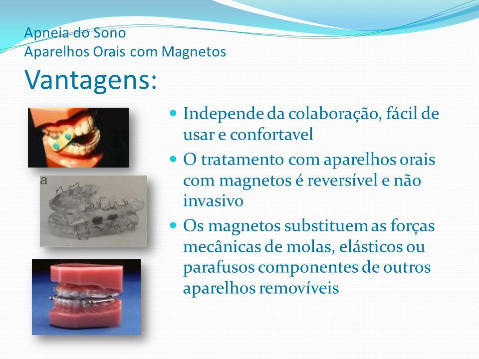Apneia do Sono Aparelhos Orais com Magnetos Vantagens: