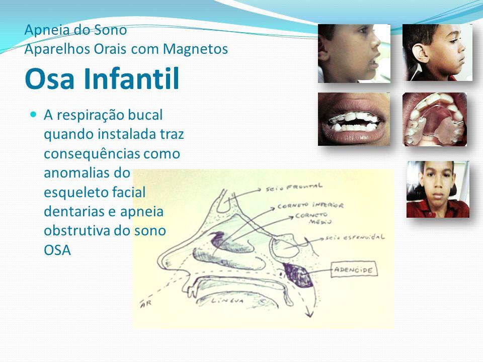 Apneia do Sono Aparelhos Orais com Magnetos Osa Infantil