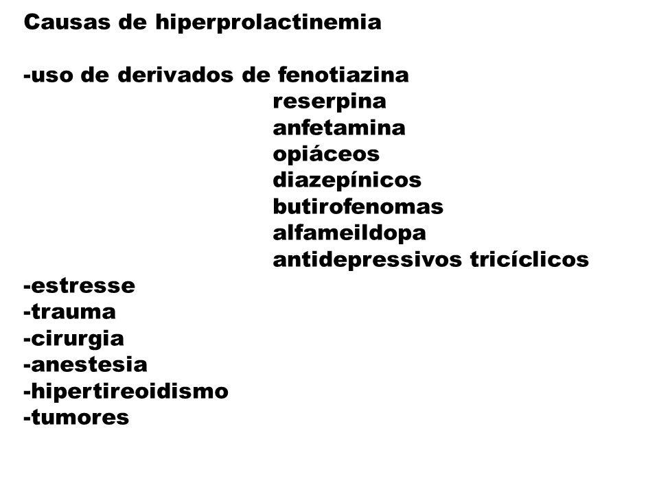 Causas de hiperprolactinemia