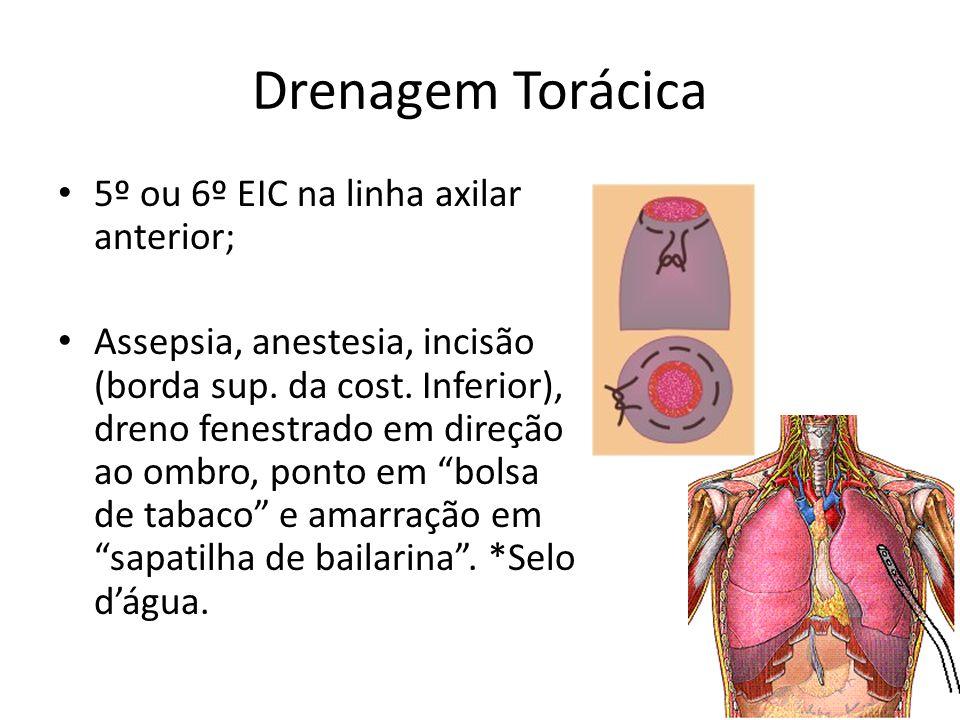 Drenagem Torácica 5º ou 6º EIC na linha axilar anterior;