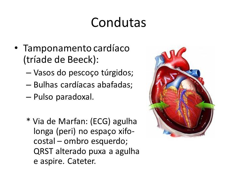 Condutas Tamponamento cardíaco (tríade de Beeck):