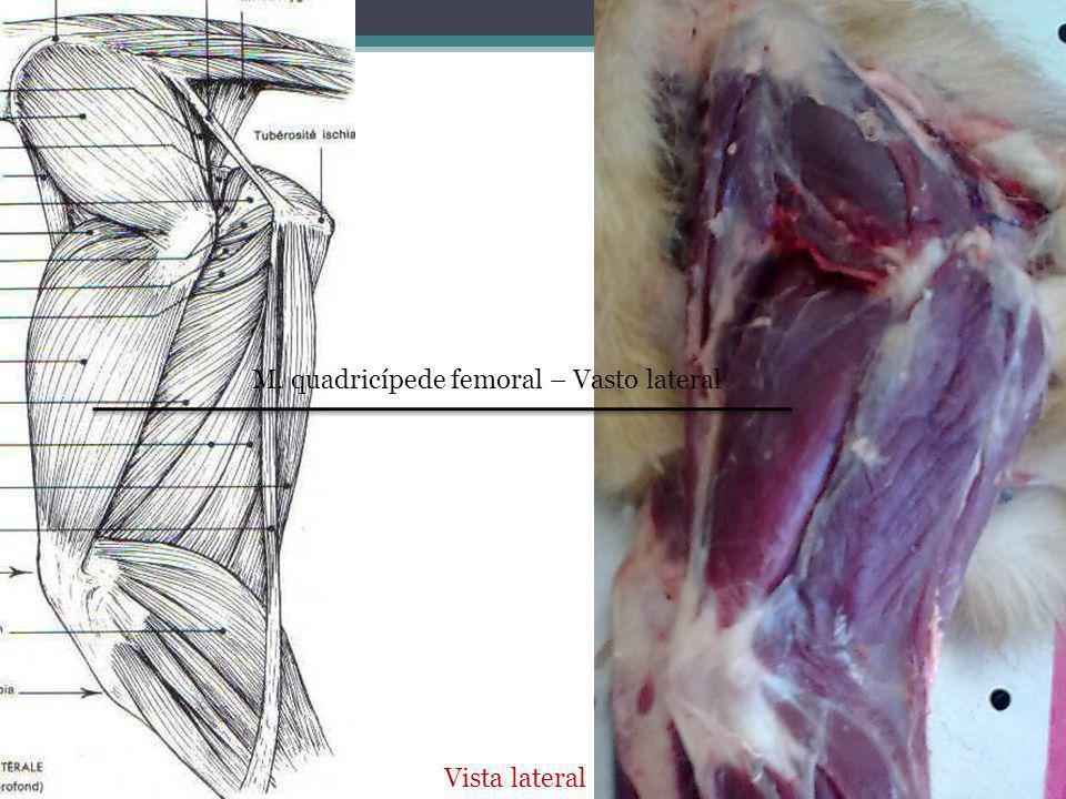 M. quadricípede femoral – Vasto lateral