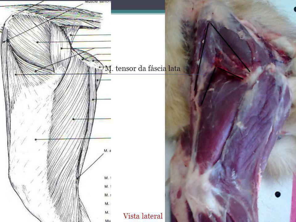 M. tensor da fáscia lata Vista lateral