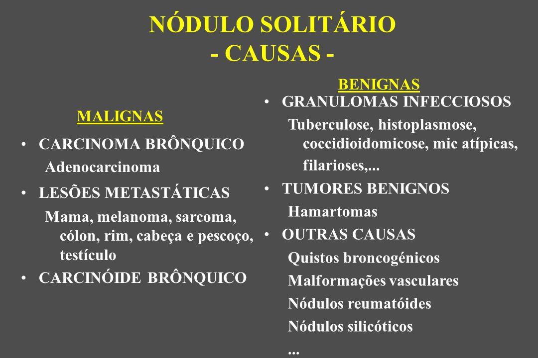 NÓDULO SOLITÁRIO - CAUSAS -