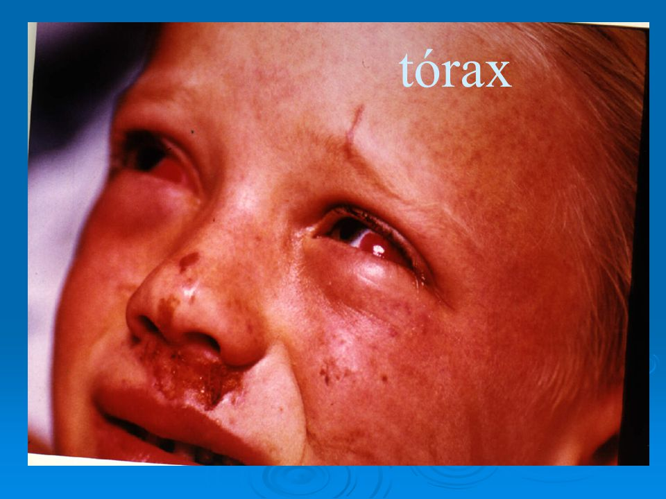 tórax