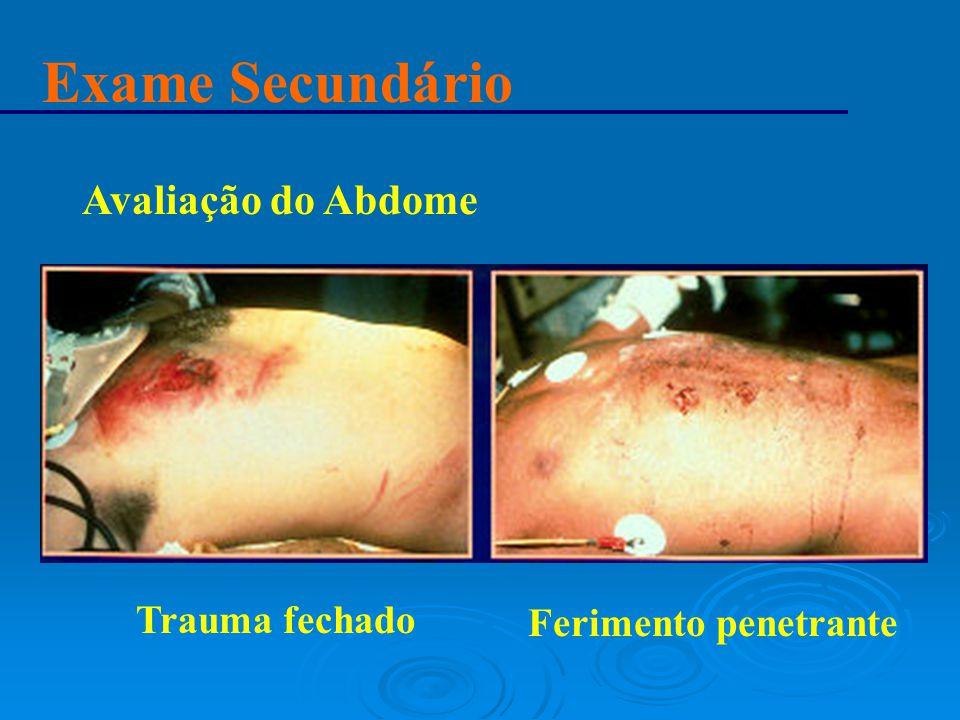 Exame Secundário Avaliação do Abdome Trauma fechado