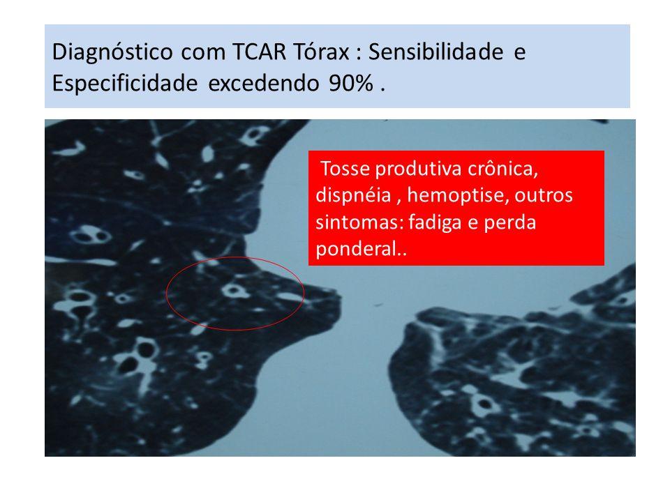 Diagnóstico com TCAR Tórax : Sensibilidade e Especificidade excedendo 90% .