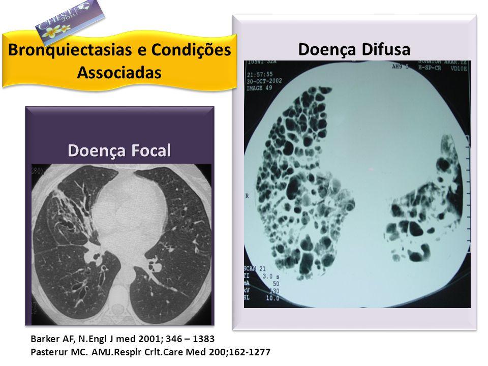 Doenças Imune – Mediadas Bronquiectasias e Condições Associadas