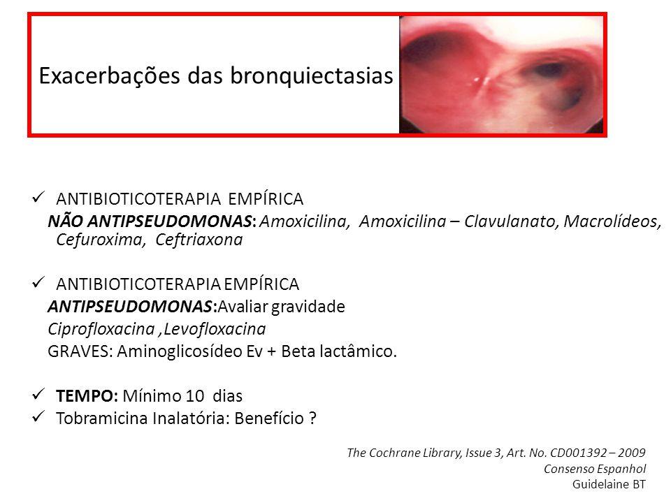 Exacerbações das bronquiectasias