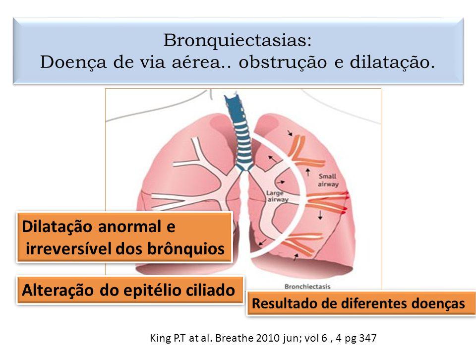 Bronquiectasias: Doença de via aérea.. obstrução e dilatação.