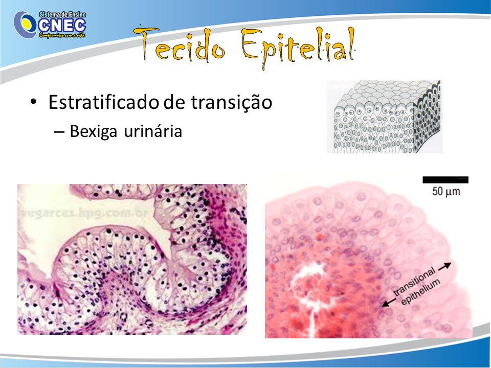 Tecido Epitelial Estratificado de transição Bexiga urinária