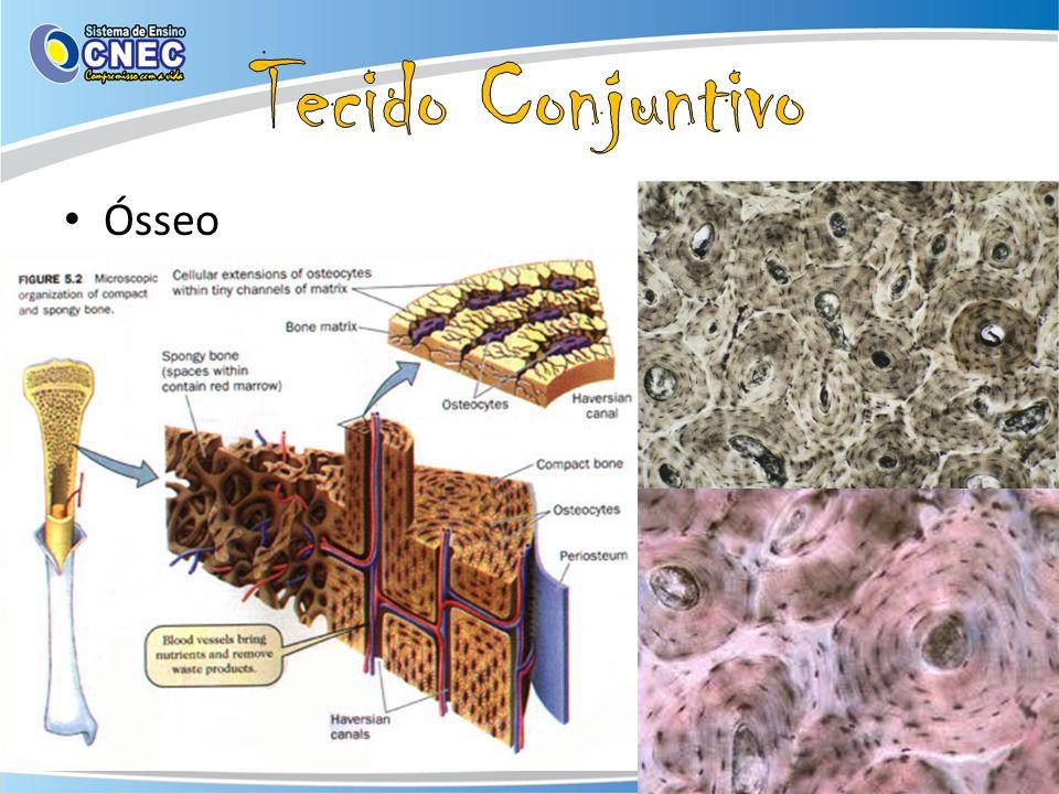 Tecido Conjuntivo Ósseo Células: Osteoblásto, osteócito e osteoclásto