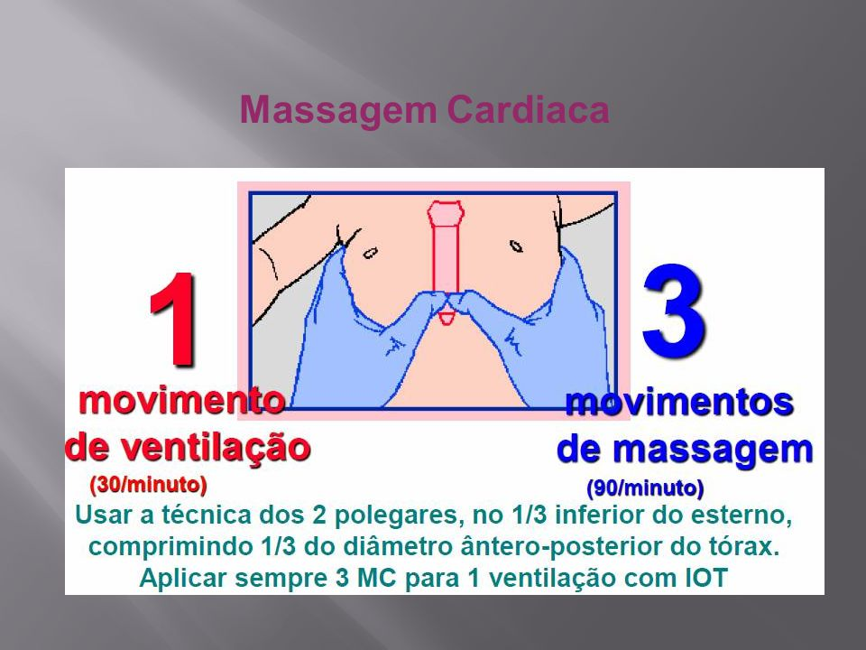 Massagem Cardiaca