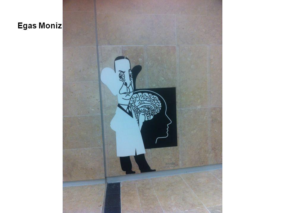 Egas Moniz