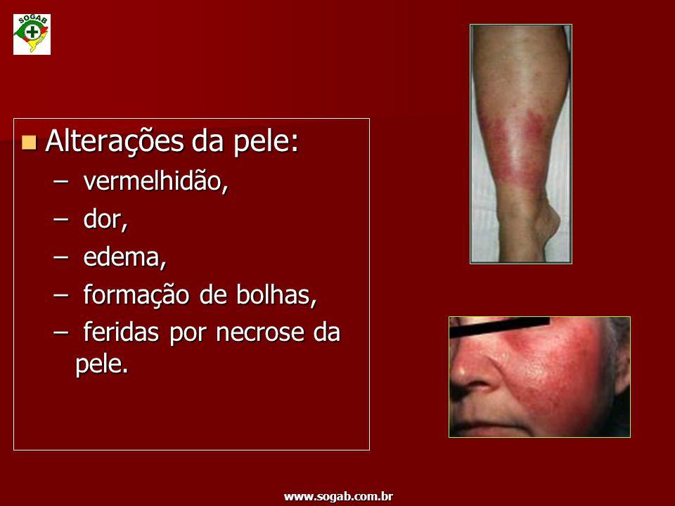 Alterações da pele: vermelhidão, dor, edema, formação de bolhas,