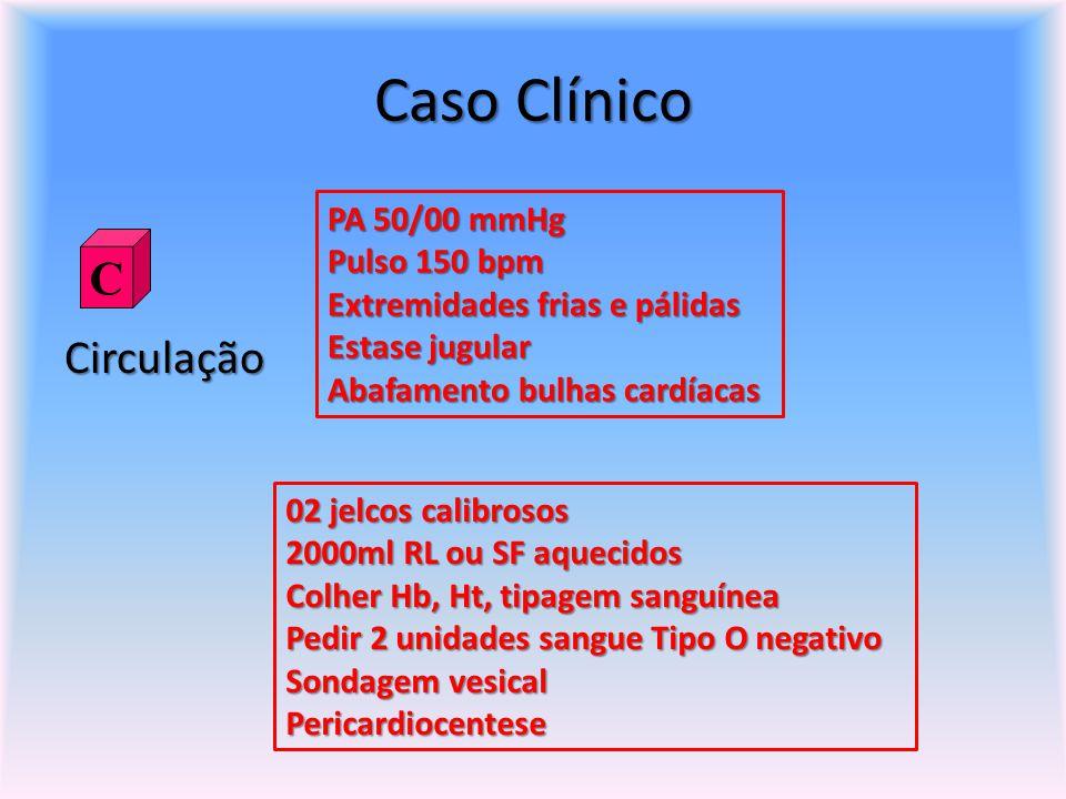 Caso Clínico C Circulação PA 50/00 mmHg Pulso 150 bpm