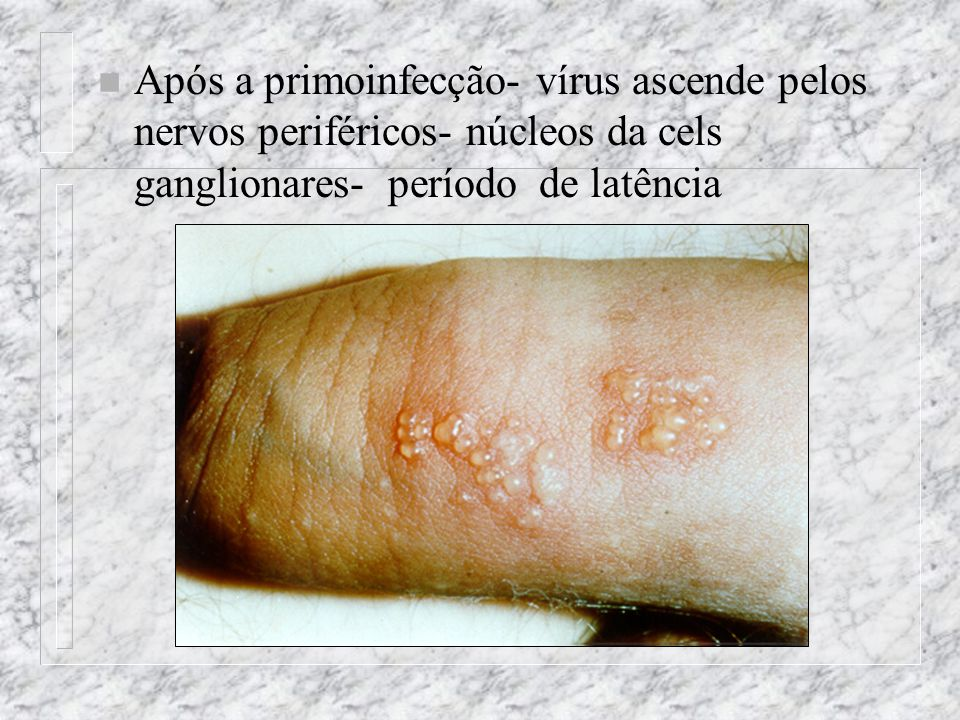 Após a primoinfecção- vírus ascende pelos nervos periféricos- núcleos da cels ganglionares- período de latência