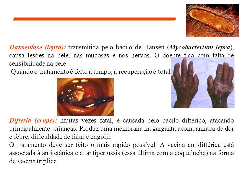 Hanseníase (lepra): transmitida pelo bacilo de Hansen (Mycobacterium lepra), causa lesões na pele, nas mucosas e nos nervos. O doente fica com falta de sensibilidade na pele.