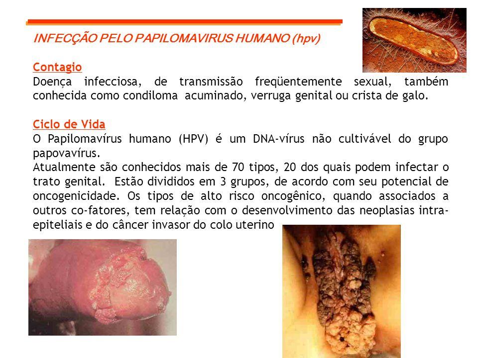 INFECÇÃO PELO PAPILOMAVIRUS HUMANO (hpv)