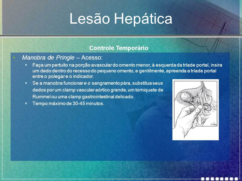 Lesão Hepática Controle Temporário Manobra de Pringle – Acesso: