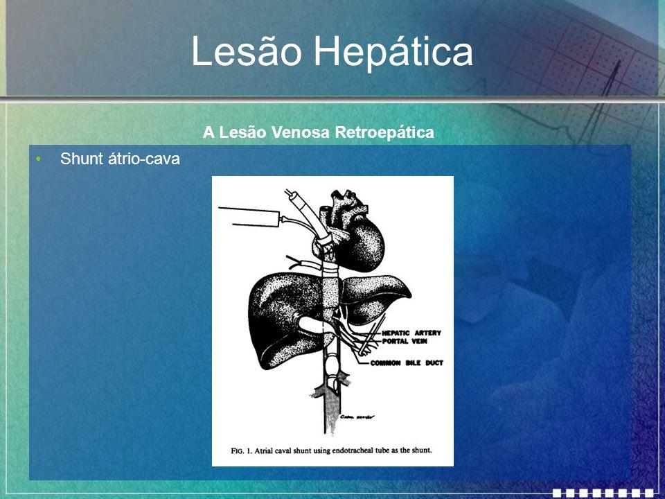 Lesão Hepática A Lesão Venosa Retroepática Shunt átrio-cava