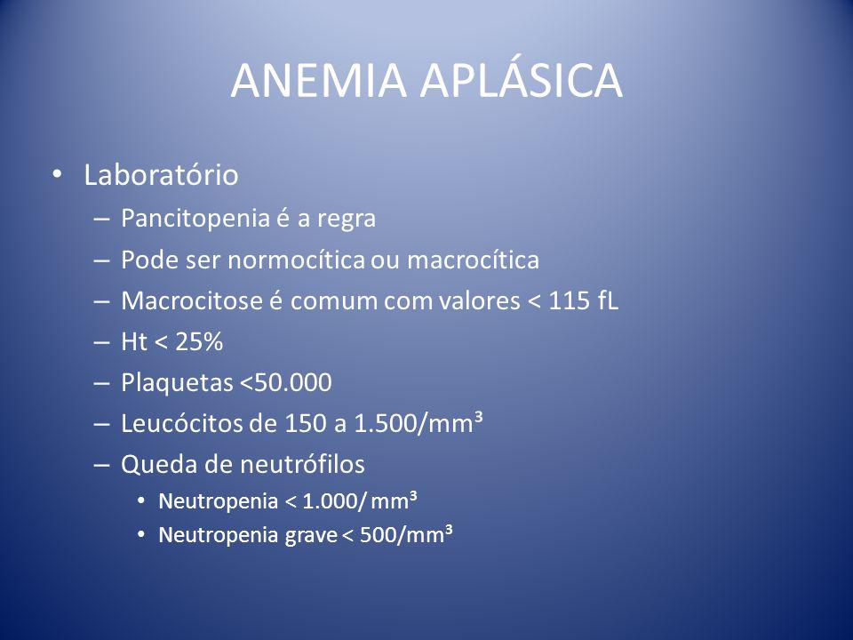ANEMIA APLÁSICA Laboratório Pancitopenia é a regra