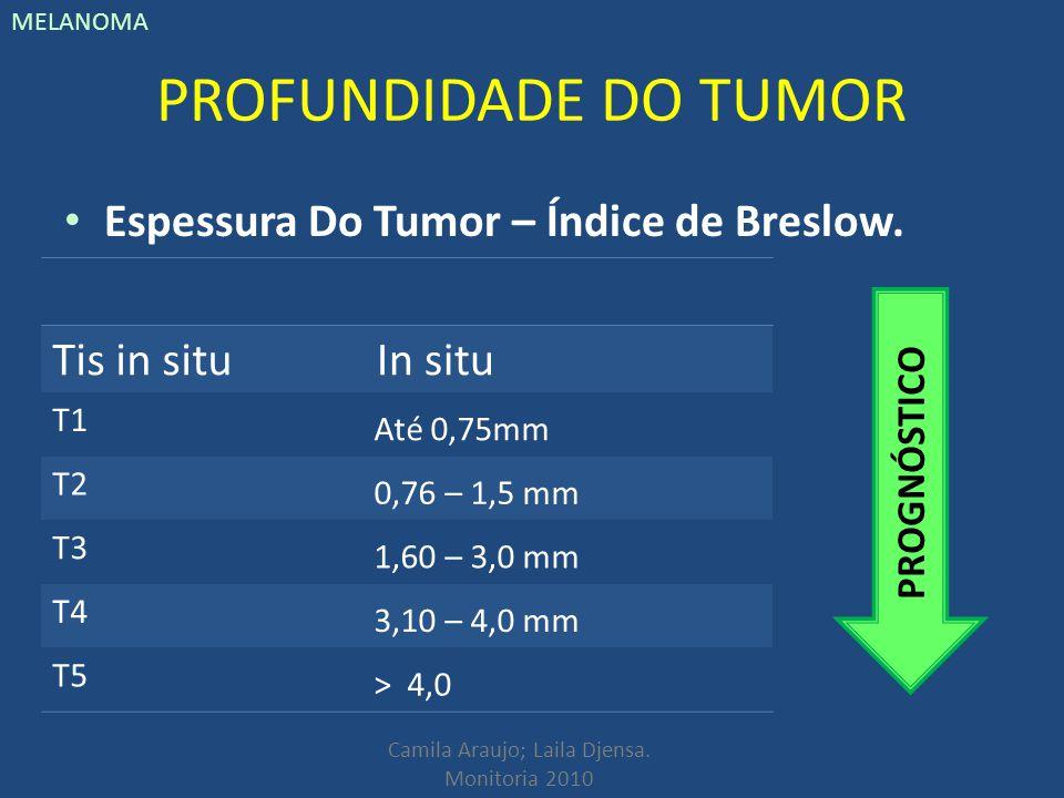PROFUNDIDADE DO TUMOR Espessura Do Tumor – Índice de Breslow.